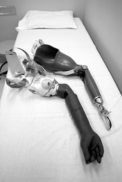 Artificial Limbs - Rehabilitation Institute of Chicago