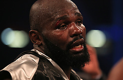 Carlos Takam with a cut to his eye after losing to Anthony Joshua during the IBF World Heavyweight Title, IBO World Heavyweight Title and WBA Super World Heavyweight Title bout at the Principality Stadium, Cardiff.