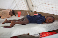 Charles Gibson, 3 years old, being treated at Martissant 25 , a cholera treatment center in Port-au-Prince run by Doctors without Boarders (MSF) treats hundreds of cholera patients a day.