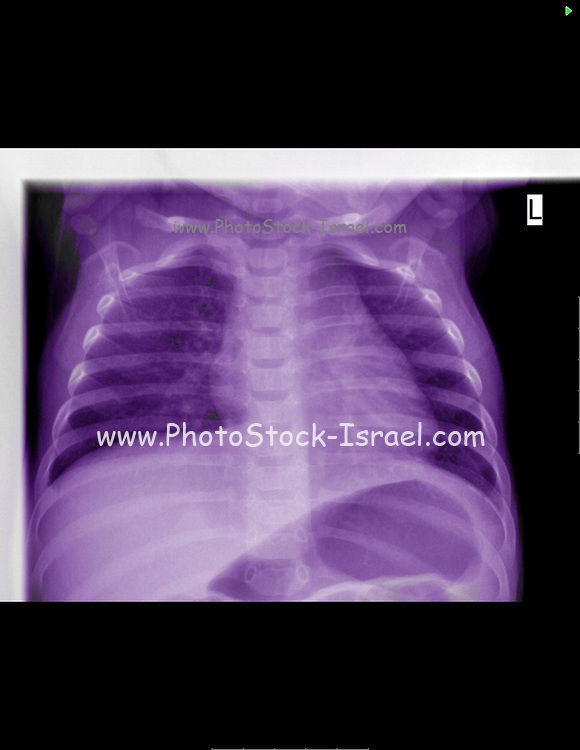 X-ray of a 6 month old infant suffering from Viral Gastroenteritis and Leukopenia