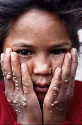 "A young girl with a skin infection. ""The infection will go away in a few years time, it is not a serious disease"" her father says. ""If you see your child dying because of lack of medicines, you became a revolutionary. In the remote areas there are not any kind of facilities. What people can do rather than to join the rebels (the Maoist)? The rebels will take care of them"", Surendra Aryal, editor of The telegraph weekly, says."
