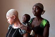 Having albinism can be a death sentence in Tanzania. Angel Salvatory, 17, who has skin cancer, with her half-brother Ezekiel, 1, and mother Bestida, who she had not seen in the four years she has lived away from home after her own father led a group of men to attack her, is seen at Kabanga Protectorate Center, in Kabanga, Tanzania on Wednesday, Aug. 29, 2012. Angel passed away at the age of 18 from skin cancer in 2013. She was interested in becoming a journalist. <br /> (photo by Jacquelyn Martin)