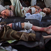 Three brothers wounded by an insurgent's bomb, Zhari District, Kandahar, Afghanistan. 2010.Photo © Louie Palu.20 X 24 inch pigment print...FOR FOTOWEEK DC HONFLEUR EXHIBITION REVIEWS ONLY. NO OTHER EDITORIAL USE PERMITTED..www.louiepalu.com