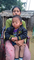 "EXCLUSIVE: By Dinesh Dubey in India Something that started as a small white dot in the eyeball of three-year boy six months ago, has now gone on to cover his entire left eye and put his life at risk. Keffrien Reang who hails from Dhalai district of north Indian state of Tripura, has been diagnosed with retinoblastoma, a cancer that starts in the retina, the very back part of the eye. His poor parents are unable to bear the expenses of his treatment. Sanjit Reang (35), a small-time farmer who makes around Rs 4000 every month, and finds it difficult to support a family of five - his wife and three children. The disease started with a small white dot in the eyeball some eight to nine months ago. His parents took him to local doctors and ""My second son has been diagnosed with ratinoblastoma last year. I know his condition is getting worse by the day, but I am not able to do anything for him,"" says Reang. Around a year ago, they spotted a small off-white spot on the eyeball. The family initially thought it is a minor problem and ignored it thinking that the spot would go away on its own. But when the problem started to get worse, they took him to the local hospital. The doctors prescribed some ointments and medicines and sent them back, assuring that the problem would be solved. As time passed by, the problem started to worsen. ""It was then we decided to take him to Agartala medical hospital. The boy was then referred to the regional cancer hospital and from there the boy was referred to another facility but nobody could give a proper diagnosis,"" says Reang. After a month-long diagnosis, the Agartala facility referred them to Regional Cancer Hospital in the same town. From there, they referred him to Shankar Netralaya in Guwahati in the neighbouring state of Assam. In the end, doctors at Dr B Barroah Cancer Institute, Guwahati, diagnosed that the boy has a retinoblastoma in the left eye. But the family couldn't go ahead with his treatment as they couldn't afford"