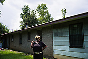 """LOWNDES COUNTY, AL – JULY 10, 2017: Ruby Dee Rudolph, 66, stand over the site where her septic tank is slowly sinking unevenly into the ground. """"Late at night, you can smell it,"""" Rudolph said. """"I would have thought by now these systems would have been fixed, but they're not.""""<br /> <br /> A recent study conducted by Baylor University suggests that nearly one 1 in 3 people in Lowndes County have hookworm, a parasite normally found in poor, developing countries. Below ground septic tanks are common in Lowndes, but due to the chalky clay soil throughout much of the Black Belt, septic tanks are prone to backing up into people's homes during heavy rains. With failing or absent municipal sewage systems in the county, many families choose to live with open, above ground sewer systems made from PVC pipe, which pump raw sewage into nearby streams or open land."""