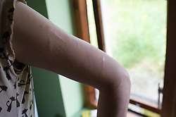 Young women with scars on her arm from self harming