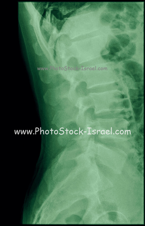 Cervical spine x-ray with a fractured Dens. A 50 year old male patient side View