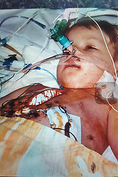 © Licensed to London News Pictures . Manchester , UK . Collect photo of Connor pictured in hospital shortly after he was born . CONNOR SHAW (17 - turns 18 today - 13/08/2017) in his home ahead of his birthday . The Banksy stencil on the wall has significance as his parents say it represents the girl who died and whose heart Connor received in a life-saving heart transplant operation . When he was born doctors said he wouldn't live long due to a heart condition but he's doing well after receiving expert care , multiple operations and a heart transplant . His parents are campaigning for an opt-out organ donor register .  See http://www.manchestereveningnews.co.uk/news/greater-manchester-news/never-thought-son-would-reach-13469965 for more information