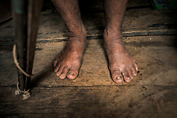 NO WEB/NO APPS - Exclusive. (Text available) Natives are not used wearing shoes, in 'Palma Real' native community, near Puerto Maldonado, Peru on July 17, 2017. The Amazon rainforest is famous as 'The Lung of the Earth', but also for the presence of numerous native communities, who have always lived isolated and in close contact with nature for generations, used to seek for food and medicines and to build items directly from the environment in which they live. The unstoppable rise of globalization has drastically changed their needs, expectations and consequently their way of life. Located in the Tambopata National Reserve, on the border between Peru and Bolivia, the native Comunidad Palma Real is one of the clearest examples of this change. Living on the banks of the Madre de Dios River since approximately 1976, Palma Real comprises about 300 people part of the nomadic community Ese-Eja, established in the Amazon rainforest of Peru before the Spanish colonization. Photo by Giacomo d'Orlando/ABACAPRESS.COM