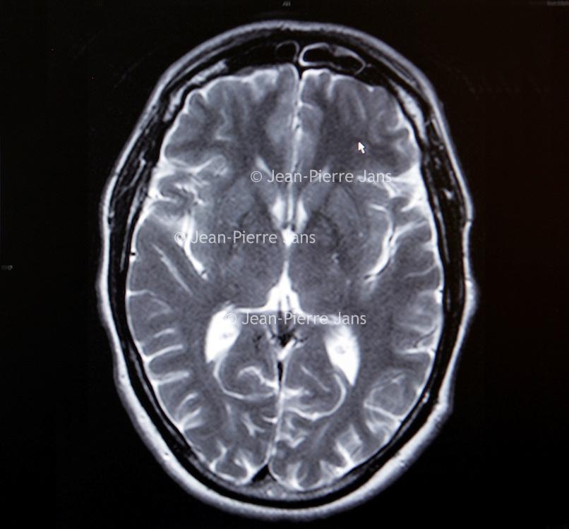 Nederland, Alkmaar , 7 oktober 2009. .Het Medisch Centrum Alkmaar (MCA) neemt vanaf september als eerste ziekenhuis in Noord-Holland 24 uur per dag patiënten op die een TIA hebben gehad..Bij een TIA (Transient Ischaemic Attack) krijgt een deel van de hersenen tijdelijk te weinig bloed, waardoor sommige hersencellen een moment minder goed of helemaal niet werken..Volgens MCA-neuroloog Majid Aramideh is het heel belangrijk dat patiënten direct de huisarts bellen wanneer zich uitvalsverschijnselen voordoen...Op de foto een hersenscan..24 hours a day the Medical Center Alkmaar (MCA) is the first hospital is taking in  patients who have had a TIA.