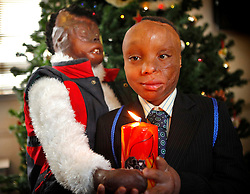 ©London News Pictures 2010.12.20. (L) Dorah Mokoena, 16, and (R)Sizwe Hlope, both badly burnt by fire, visit London Fire Brigade to warn of the dangers of candles at christmas on 20th Dec 2010.Photo credit should read: Olivia Harris/London News Pictures