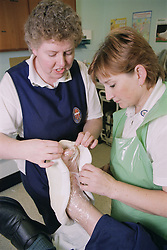 Nurses applying a scotch cast diabetic boot to patient's foot for pressure relief in outpatients plaster room,