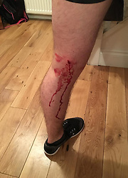 Pictured: The damage done to Jordan Fyfe's knee after he was shot by an air pellet when walking the dog in  Kirkintilock last Friday.<br /> <br /> Assistant Chief Constable Mark Williams today unveiled details of the three-week drive along with the designated stations where unwanted weapons can be handed in for secure disposal. <br /> <br /> Ger Harley   EEm 19 May  2016