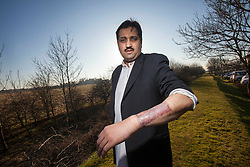 Mohammed Abad's willy and one testicle were ripped off during a horror car accident when he was just six. Pic of the area on his arm used for the skin graft..