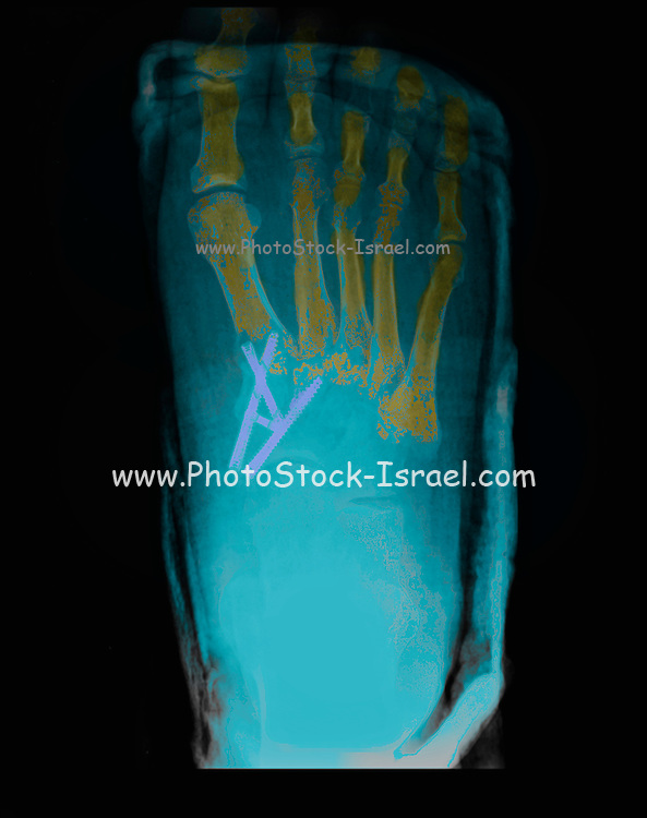 foot and ankle X-ray of a 47 year old male patient suffering from Osteoarthritis