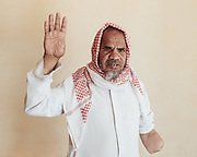 Ali Mohammed Awad dug up a metal object that he found sticking out of the ground in 1994. When it exploded he lost his right thumb, left arm and right eye. The vision in his left eye is impaired and he is almost completely deaf. Ali was with a relative who was also injured; nearby villagers found the other man carrying his own hand.