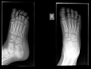 Fracture in the first metatarsal bone of the right foot of a 3 year old male patient
