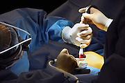 Nederland, Rozendaal, 23-3-2007..Operatiekamer van een privé kliniek. De plastisch chirurg is met een borstvergrotingsoperatie bij een jonge vrouw bezig...Foto: Flip Franssen