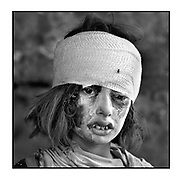 Faces of Mosul<br /> <br /> A collection of images from 4 time Pulitzer prize winning photographer Carol Guzy, gives us a glimpse into the faces of those affected by the fierce conflict with ISIS in Mosul. Wounded and weak, most who survived now face an uncertain future in the limbo of IDP camps. Shattered lives, lost loved ones and escape from the rubble of collapsed homes and the evil of ISIS doctrine, leaves scars of emotional trauma even more difficult to heal. The war in Mosul is over, but the humanitarian crisis continues.<br /> <br /> Mosul, Iraq - An injured girl arrives at a medical Trauma Stabilization Point near the Old City as civilians, many wounded and weak, flee the fierce battle with ISIS in West Mosul amid ruins of the city. <br />  ©Carol Guzy/zReportage.com/Exclusivepix Media