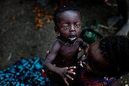 A woman holds an ill child in Southern Sudan which is suffering from severe food insecurity. The nearest hospital is over a two days walk away.