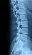 Human Lumbar Spine x-Ray side view