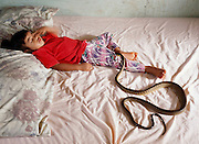 Brown tree snake in bed with a very young sleeping child:every parent's worst fear. photo illustration. .There are no birds on the Pacific Island of Guam thanks to the Brown Tree Snake. These hungry egg-eating snakes have overrun the tropical island after arriving on a lumber freighter from New Guinea during World War II. Besides wiping out the bird population, Brown Tree Snakes cause frequent power outages: they commit short circuit suicide when climbing between power lines. They invade people's homes through the smallest openings. They have emerged from toilets. And they love the smell of babies. Several sleeping infants have been injured by the snake trying to swallow an arm or a leg...For this photo, an expert researcher and handler of brown tree snakes placed a brown tree snake that had been in a refrigerator to restrict its movement (cold blooded animals do not move much when they are chilled) on the bed with the sleeping child and monitored its movement as it warmed up. As it warmed up, the snake sensed the baby's breath and started to move toward it..