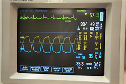 Monitor recording heart rate of patient during operation in theatre of hospital,